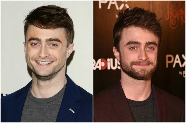 La barba curata con pizzetto dell'attore Daniel Radcliffe prima e dopo