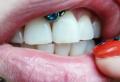 Smiley piercing: la bellezza di piercing nascosto, tutto quello che devi sapere!