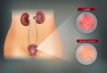 Come curare la cistite senza antibiotico: sintomi, cause e metodi per contrastarla in modo naturale!